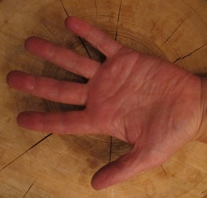 wondroos hand